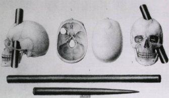 gage-beyin-hasarı-bilimfili