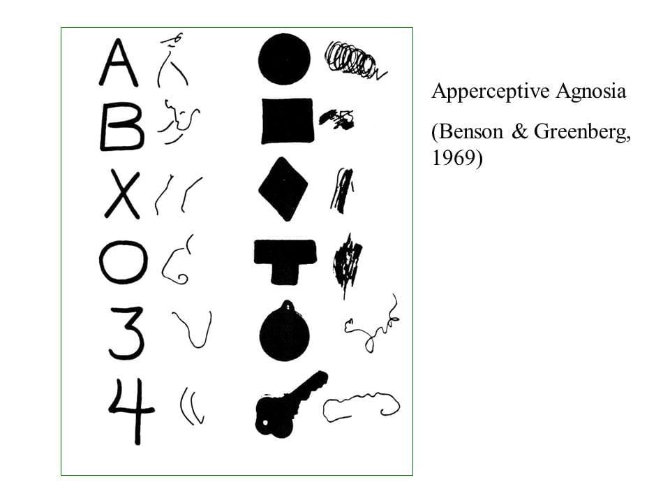 Görsel agnozi'nin insanlar tarafından nasıl göründüğüne dair bir tasvir.