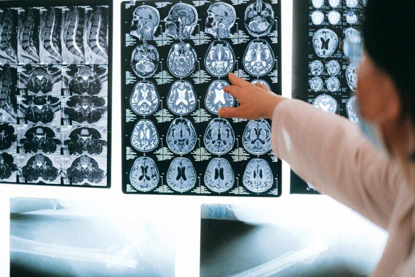 Beyin-Nasıl-Çalışır